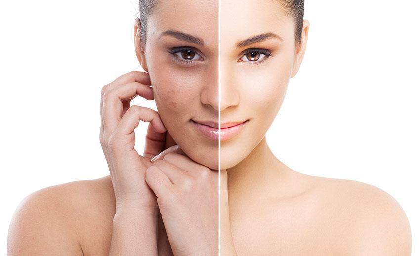 Traiter l'acné, sequelle acné,